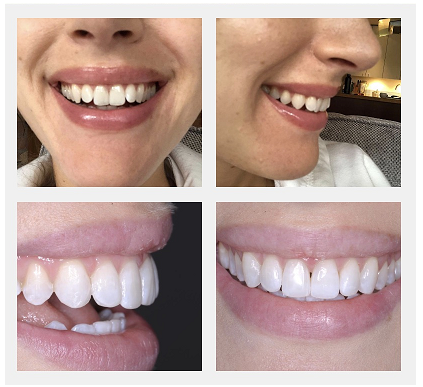 Invisalign Patient Story