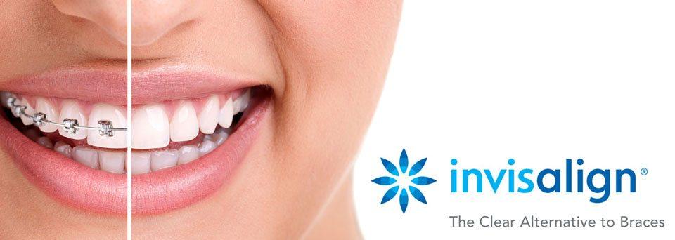 Lets Talk Teeth Straightening Options.