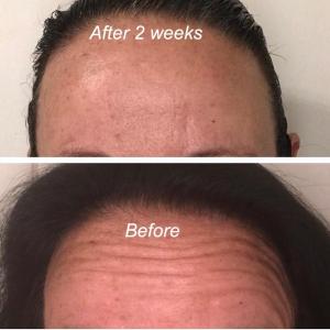 Facial Botox Results